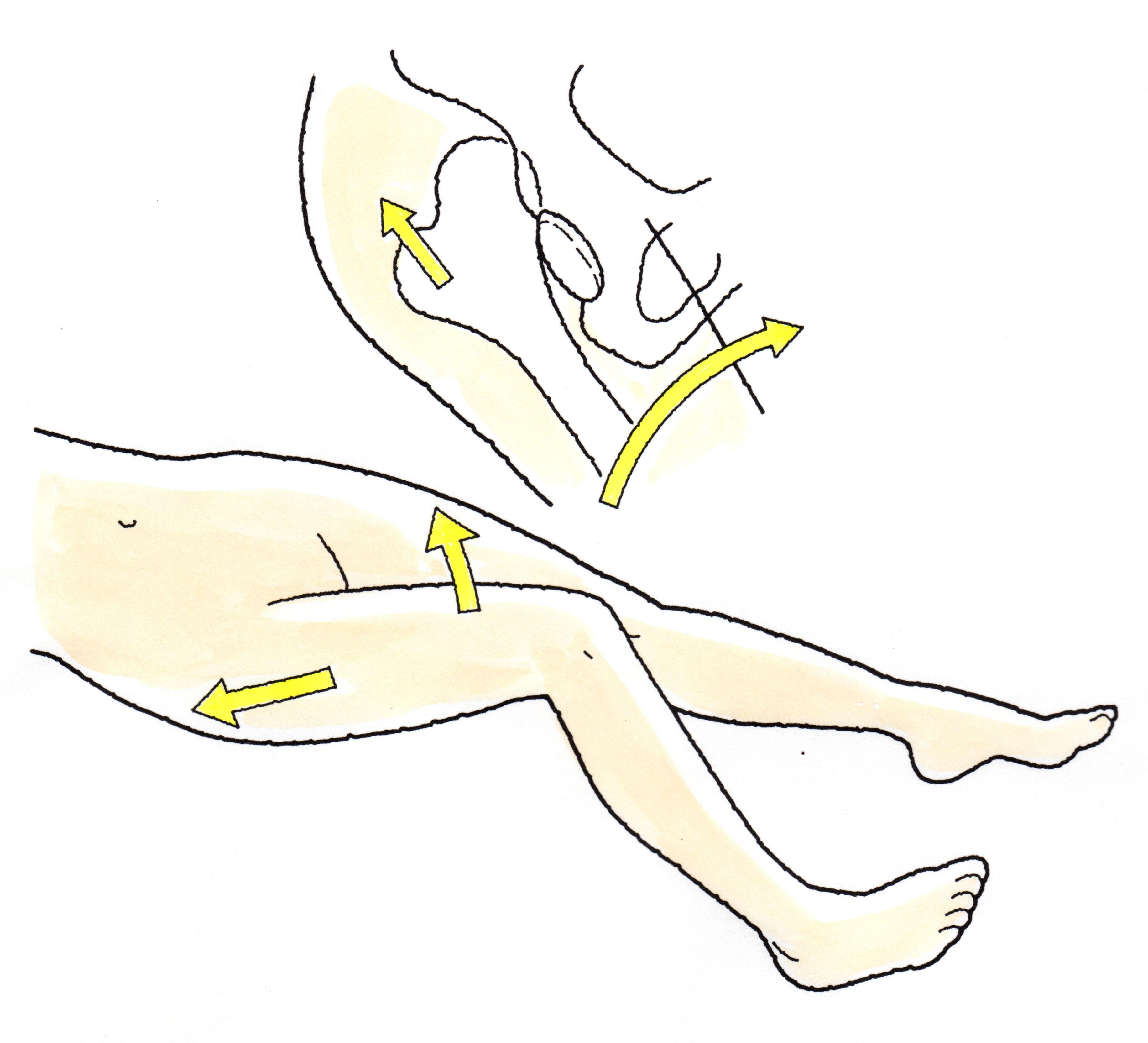 骨頭 術 脱臼 置換 人工