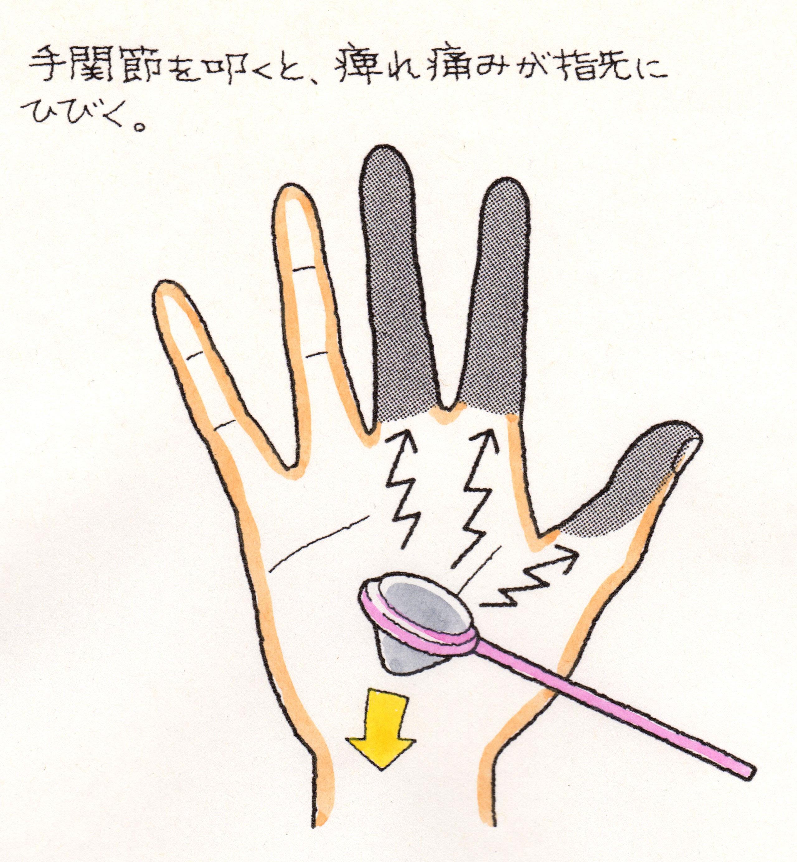 手 根 管 症候群 手根管症候群の手術する前に知っておきたい4つのこと