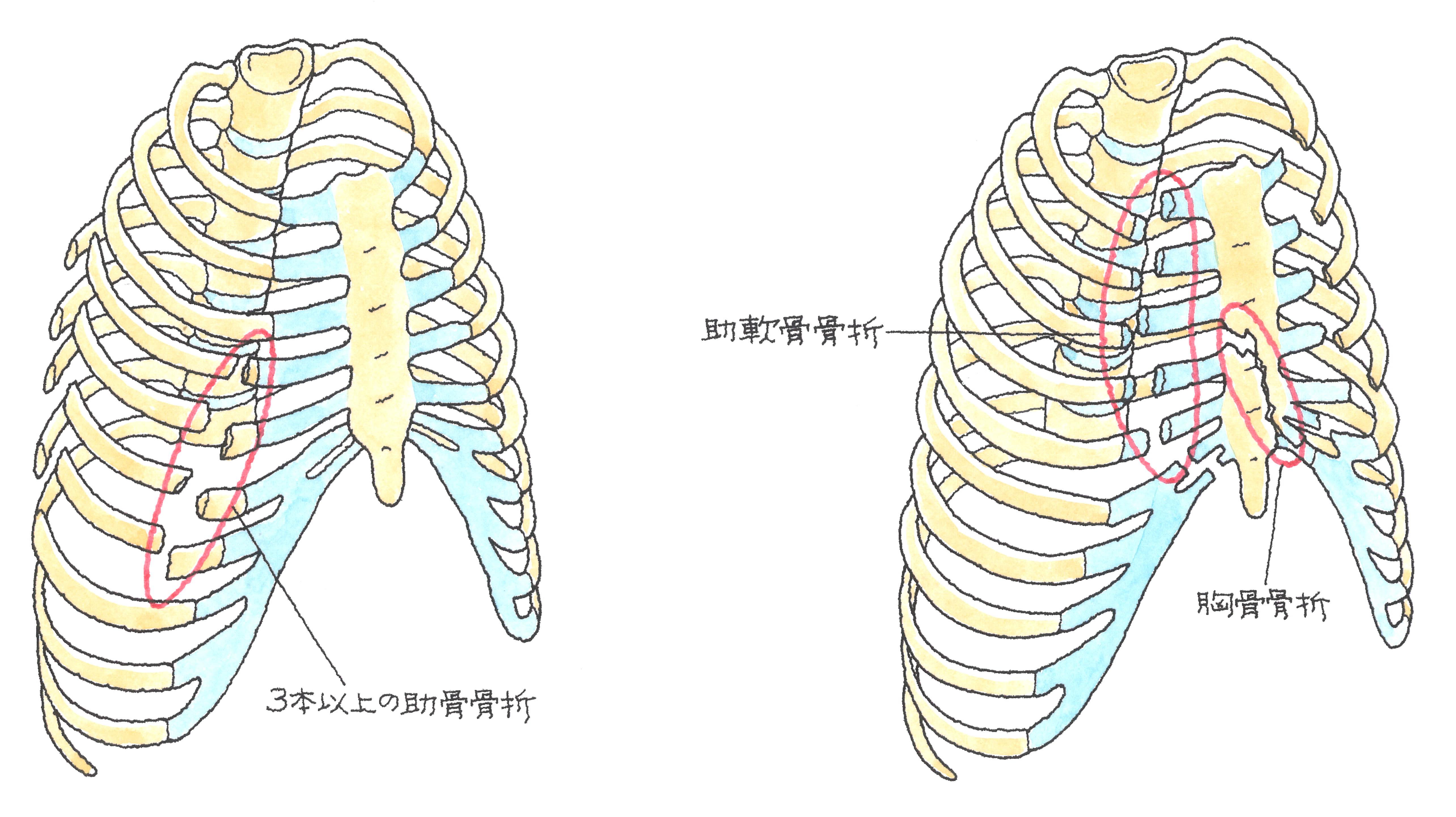 72-1.jpg
